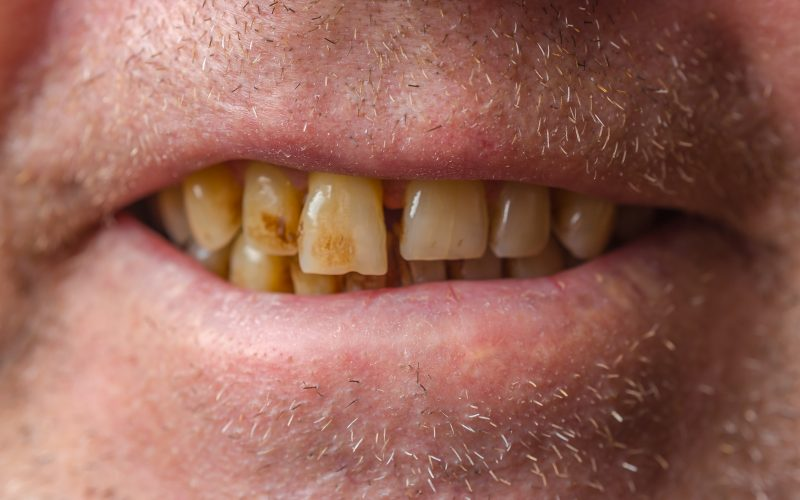 Many bad teeth and insurance best options