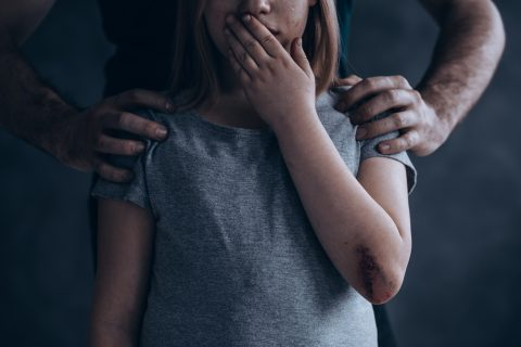 A picture of a child with a scape and bruise on her arm.